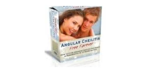 Angular Cheilitis coupons