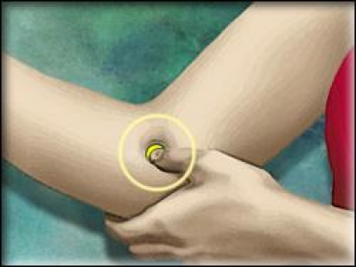 Helping Tools for Self Acupressure Therapy