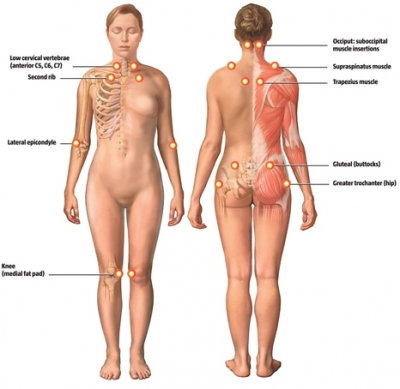 Fibromyalgia Trigger Points. 1992 a trigger-point test