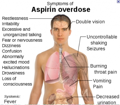 Symptoms of Aspirin Overdose