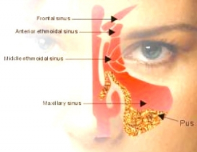 Augmentin For Sinus Infection In Adults